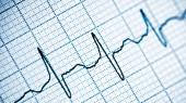 New method aids heart disease studies, drug discovery efforts