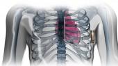 VU first to offer new implantable defibrillator
