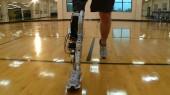 Robotic advances promise artificial legs that emulate healthy limbs