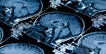 Using MRI to assess myelin health