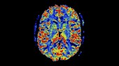 A view of brain function in disease