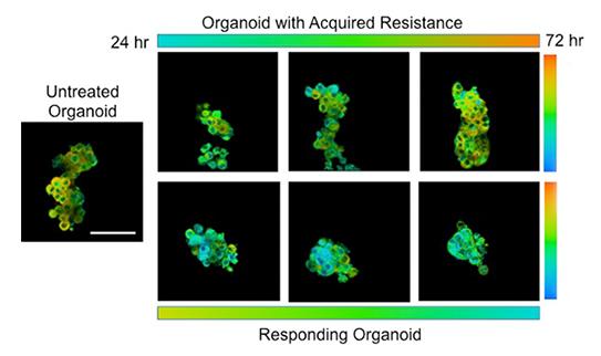 Organoid Tissue Dish Cancer