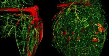 Aggressive bone cancers build more blood vessels