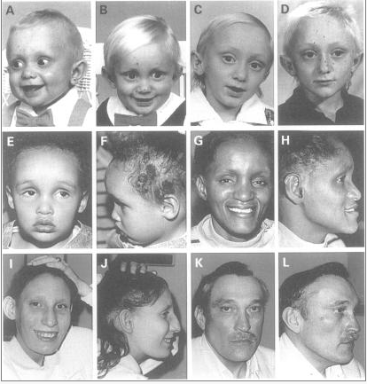 Images of individuals with Alagille syndrome (National Institutes of Health)