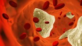 VUteam explores new cholesterol processing pathway