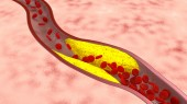 Target for atherosclerosis therapies