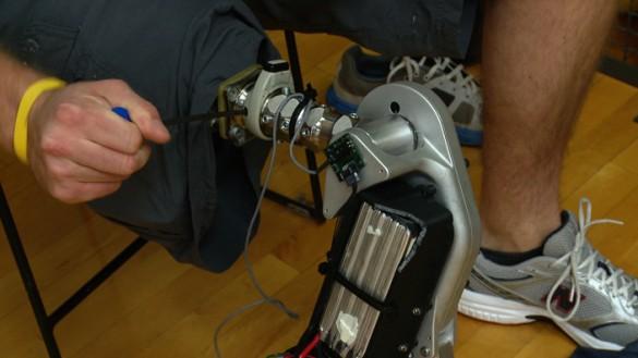 Shark attack victim helps Vanderbilt University researchers develop the world's first bionic leg
