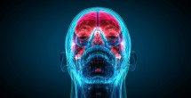 Study seeks to ease 'chemobrain' for cancer patients