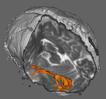 Brain activity in the thalamus (Vanderbilt)