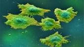 'Stretched' cells promote cancer