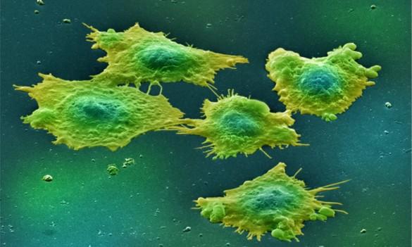 Study identifies potential colon cancer biomarker