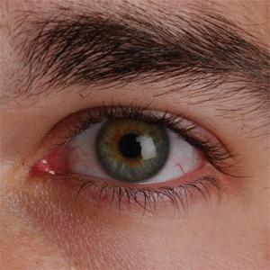 Image result for dry eye
