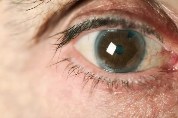 Does Eye Color Change After Cataract Surgery