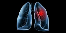Potential target for lung cancer therapy