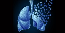 Lung cancer study reveals new drug combination targets