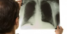 xray of lung
