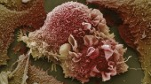 Drugs reverse lung cancer cell changes