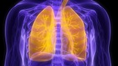 Study explores race differences of lung cancer risk