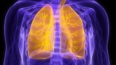 Grant spurs study of novel imaging technique for COPD