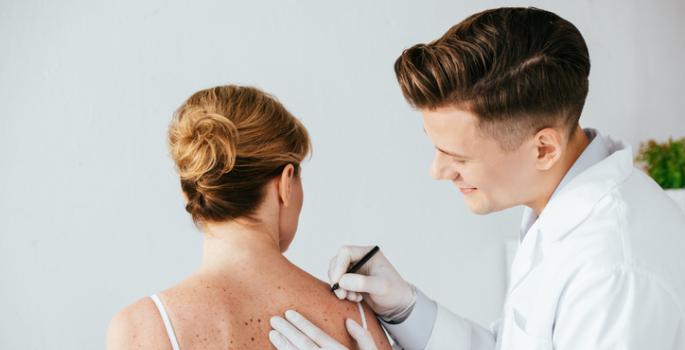 metastatic melanoma