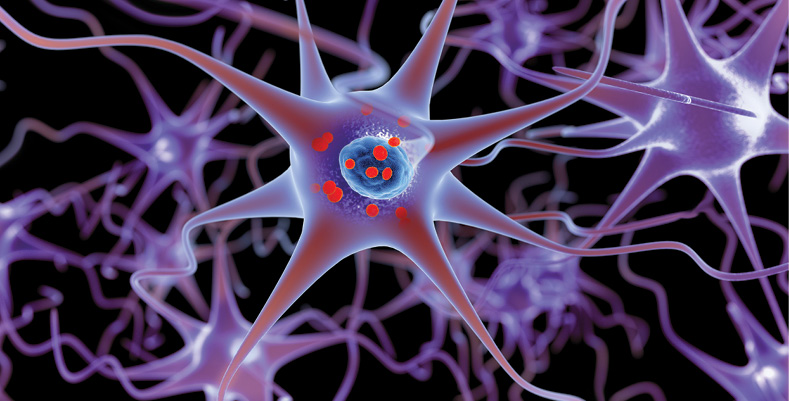 Parkinson's disease is illustrated in this 3D image showing accumulation of protein deposits, as represented by small red spheres, in brain cells. (Lars Neumann/istock)